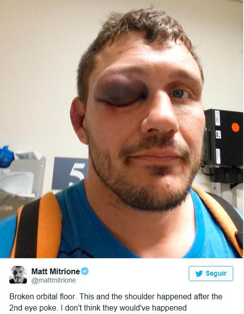 Matt Mitrioni con el ojo morado