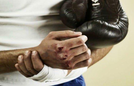 nudillos boxeador