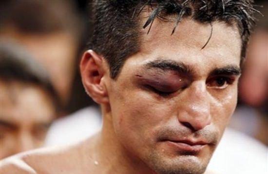 ojos boxeador