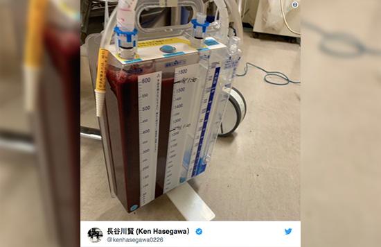 Ken Hsegawa sufre una lesión en lo pulmones después de la derrota ante Aung La N Sang en ONE: A New Era