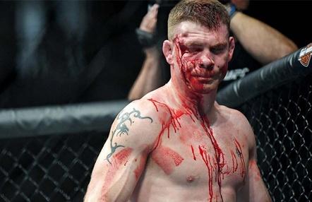 Paul Felder y su deseo de encabezar el UFC Dublín