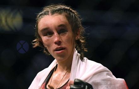 Joanna Jedrzejczyk muestra su rostro desfigurado una semana después del combate
