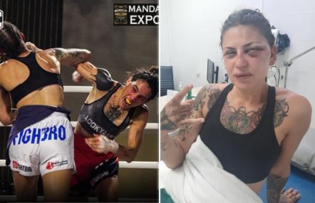 Maisha Katz atiende a Titan Channel y muestra las consecuencias de su pelea en WLC